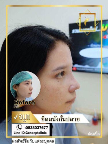 nose29