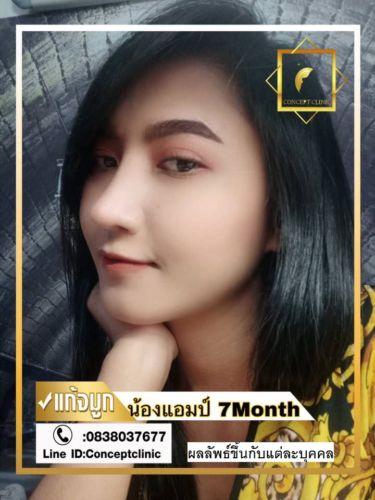 nose31