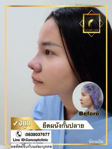 nose95