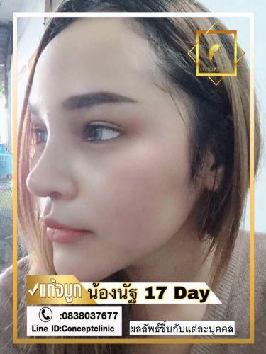 nose22