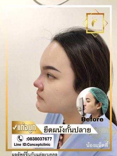 nose60