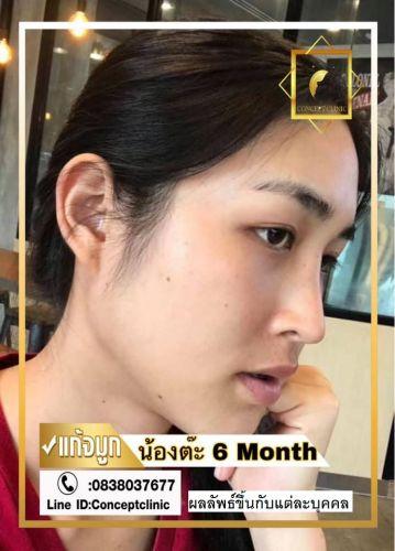 nose69
