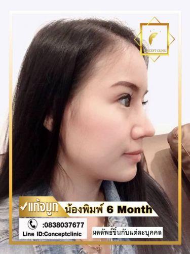 nose86